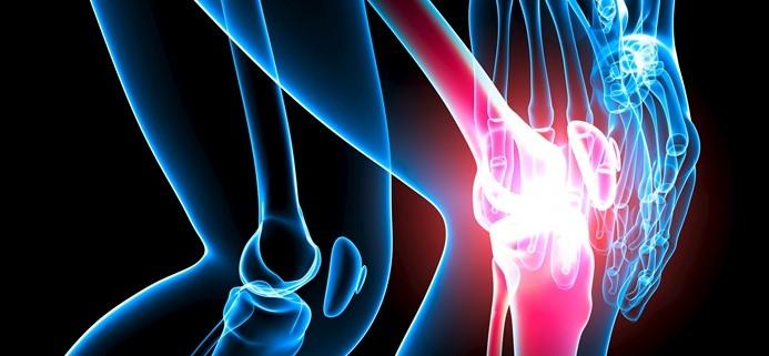 Instituto Ari - artrosis de rodilla